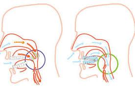 Silensor-sl-apnea